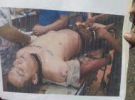 Revela Ejército foto del sospechoso herido rescatado por comando